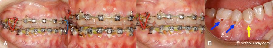 Décalcification et caries dentaires pendant un traitement d'orthodontie causé par une mauvaise hygiène buccodentaire