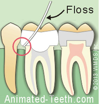 Débordement d'une couronne dentaire qui attrape la soie dentaire. Crown overhang on a dental crown.