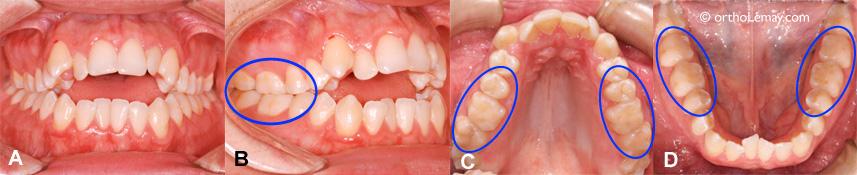 Usure dentaire dents postérieures bruxisme malocclusion