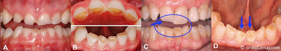 Bruxisme, grincement et usure dentaire