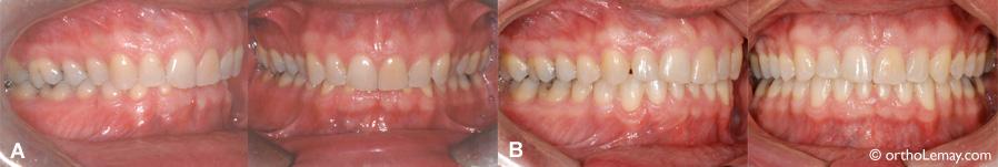 Bruxisme dentaire, usure et malocclusion traitée en orthodontie