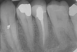 traitement de canal et pdl ligament parodontal visibles sur une radiographie