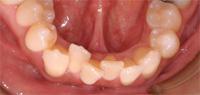 Malocclusion dentaire avec chevauchement et encombrement