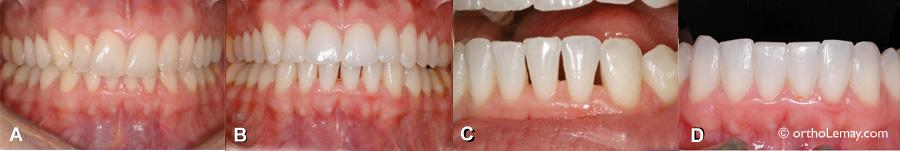 Fermeture d'espaces triangulaires noirs inesthétiques à l'aide de composite dentaire après un traitement d'orthodontie.