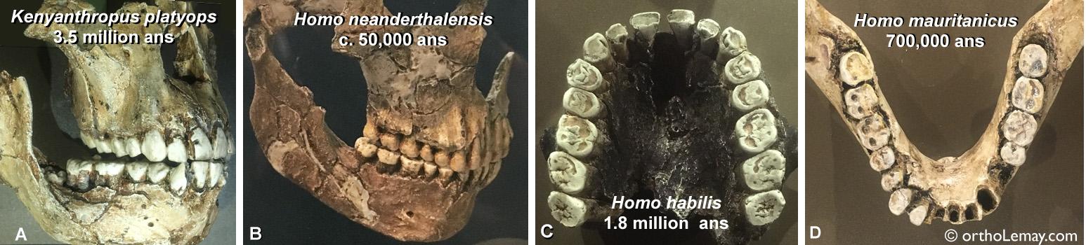 Occlusion de nos ancêtres; il n'y avait pas de manque d'espace ou de malpositions dentaires mais beaucoup d'usure dentaire.
