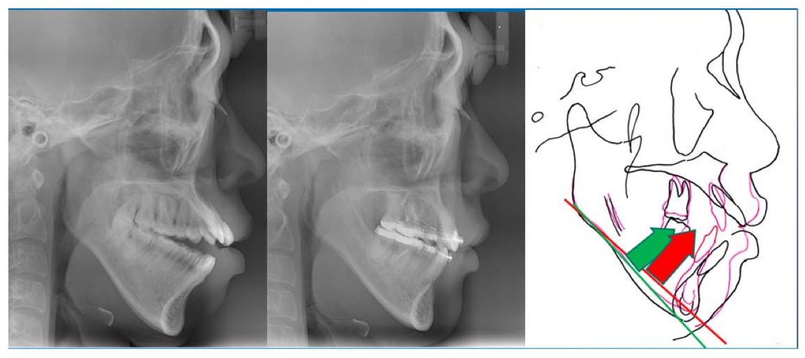 Traitement d'orthodontie complexe avec chirurgie orthognathique, utilisation de mini-vis d'ancrage et extractions.