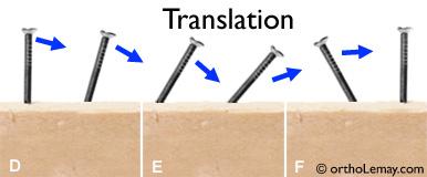 Translation ou mouvement horizontal orthodontique d'une dent