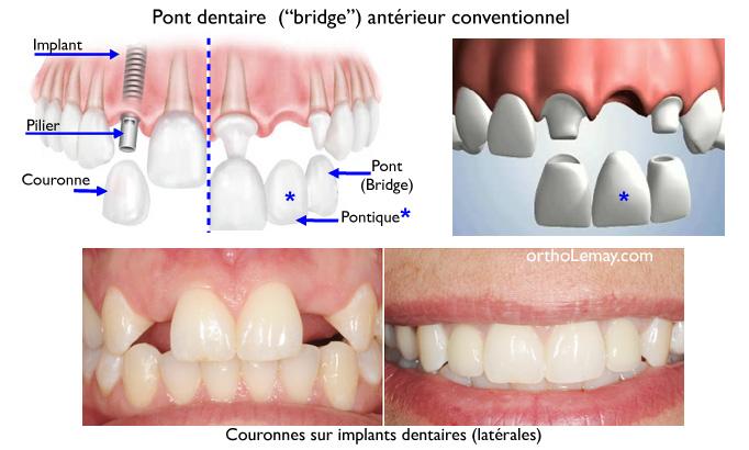 Pont dentaire (bridge dentaire) fixe, couronne et pontique, implant dentaire. Il est possible de faire un traitement d'orthodontie avec un pont.