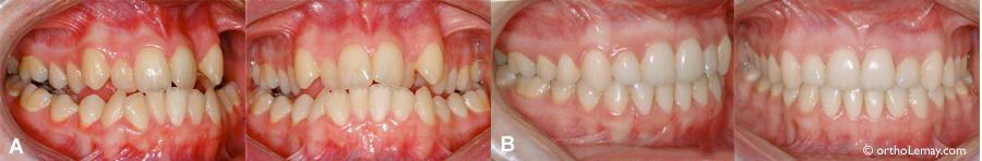 Sévère malocclusion dentaire pouvant être associée à de l'apnée du sommeil et du ronflement