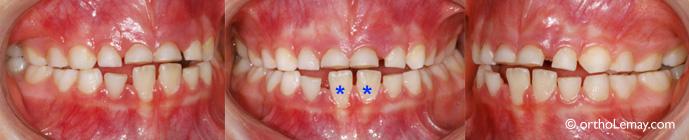 Constriction macxillaire bilatérale, grincement de dents, usure dentaire importante et ronflement chez un garçon de 6 ans
