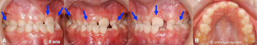 Constriction maxilliare bilatérale et apnée du sommeil  chez un enfant de 8 ans.