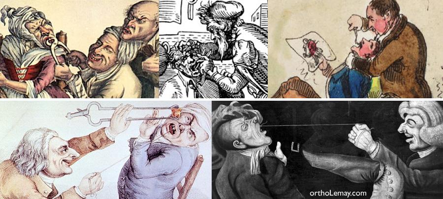 Extractions dentaier dans l'antiquité et le moyen âge sans anesthésie et antibiotiques. Dental extraction in the middle ages without anesthesia and antibiotics.