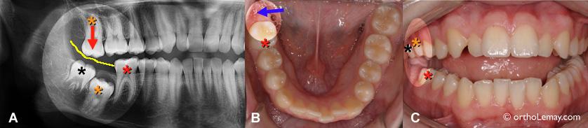 Molar over eruption and gingival impingment. Supra éruption d'une molaire et pression sur la gencive opposée.