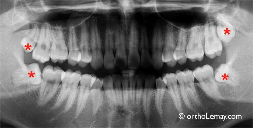 impacted wisdom tooth to be extracted, dents de sagesse à extraire