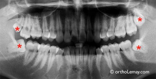 Impacted wisdom tooth extraction. Extraction de dents de sagesse incluses.