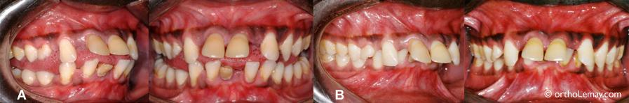 Béance antérieure et problèmes parodontaux. Orthodontiste Lemay Sherbrooke orthodontie orthosherbrooke www.ortholemay.com orthodentie orthodentiste