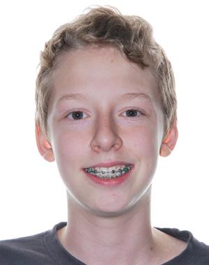 Keven Goyette, gagnant du concours d'hygiène buccodentaire chea les orthodontistes Lemay à Sherbrooke