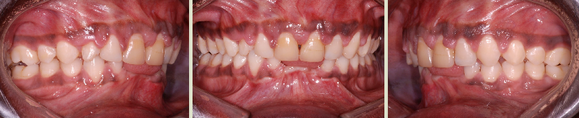 Orthodontic treatment of an adult with a very severe periodontal condition.
