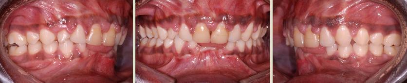 Traitement orthodontique d'un adulte avec une condition parodontale très sévère.