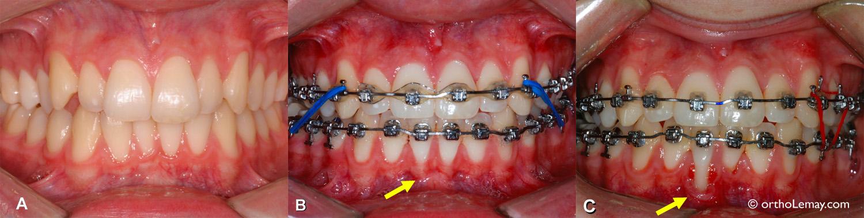 Récession gingivale ou déchaussement qui progresse rapidement pendant un traitement d'orthodontie. Perte de gencive. Exemple d'une progression rapide de récession gingivale pendant un traitement d'orthodontie.