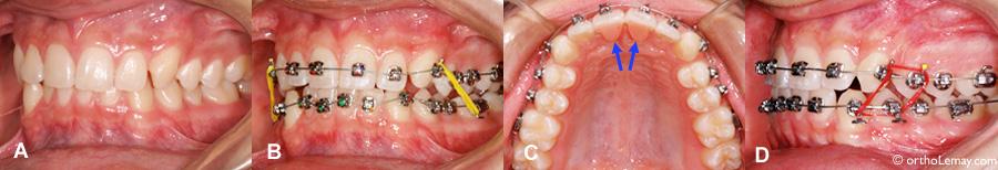 BIte blocs talons de disclusion orthodontiques