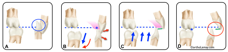plan articulé ou bite plane utilisé en orthodontie pour ouvrir l'occlusion