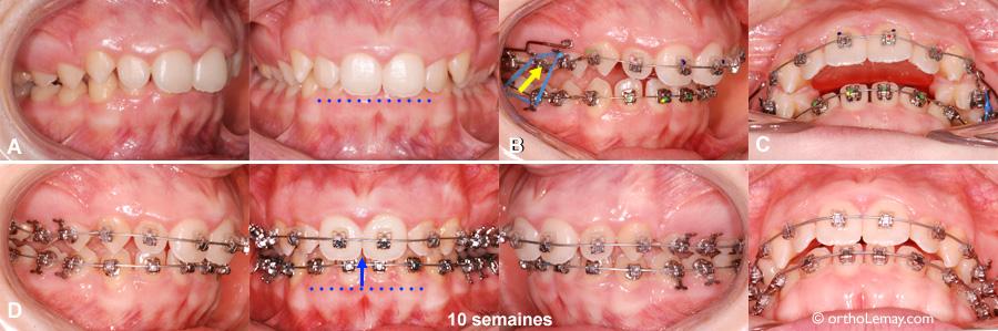 Utilisation d'un plan articulé (bite plane) orthodontique pour ouvrir l'occlusion et diminuer le surplomb vertical.