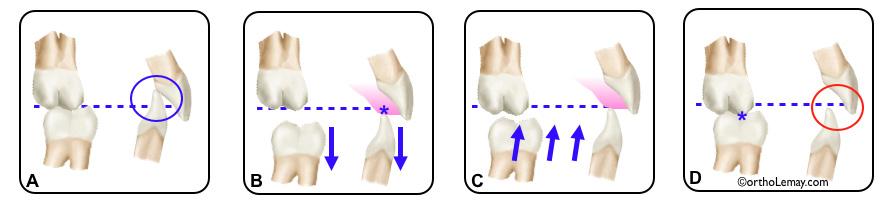 Plan articulé permettant une disclusion pendant les corrections orthodontiques