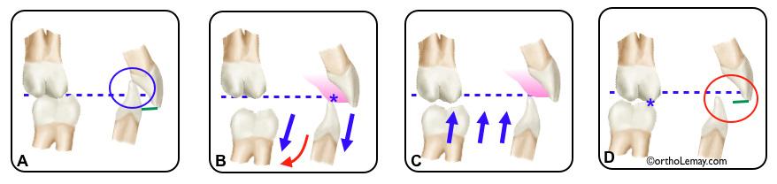Plan articulé utilisé en orthodontie pour ouvrir l'occlusion