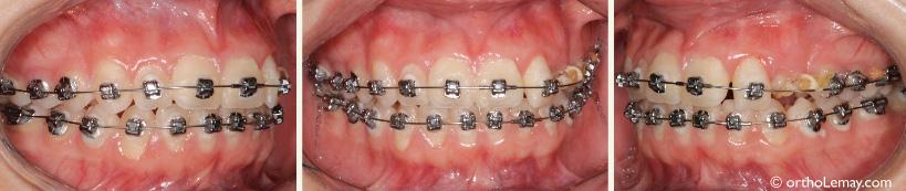 Transfert d'un cas d'orthodontie avec des brackets posés à l'envers.