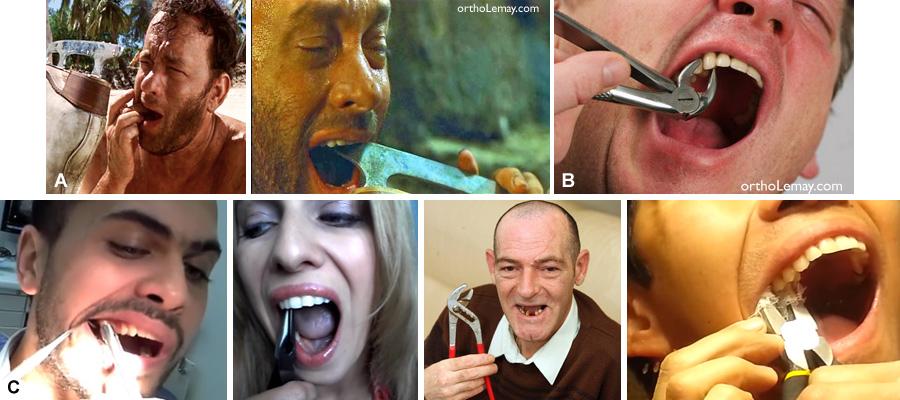 Il n'est pas recommandé d'extraire ses propres dents comme le font certains sur YouTube ou Internet. Ceci est dangereux. Consultez plutôt un dentiste.