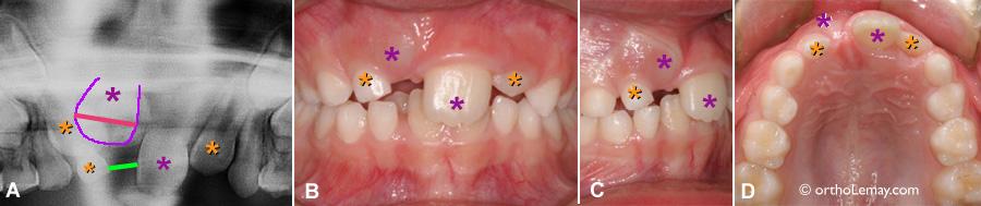 trauma avulsion traumatisme dentaire eruption perte espace 539726 TL8