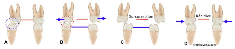 Surcorrection et interférences dentaires pendant l'expansion maxillaire rapide en orthodontie