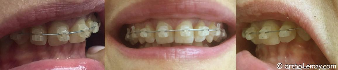 Malocclusion  class2 II 2 bracket céramique  en orthodontie