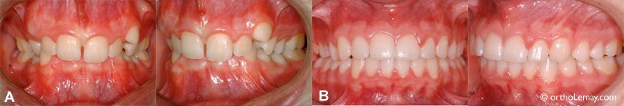 """(A)Malocclusion de type classe (div. 2) avec surplomb vertical excessif et manque d'espace important. (B) Après les corrections, les dents inférieures sont dégagées et les lignes médianes sont """"parfaitement"""" alignées."""
