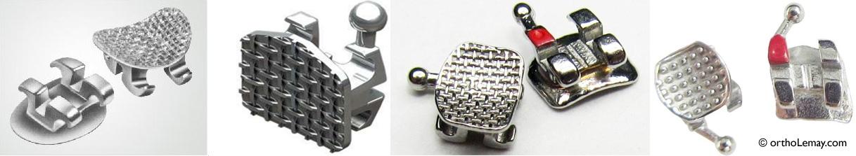 Le grillage sur les bases des boîtiers orthodontiques permet une rétention mécanique de la colle.