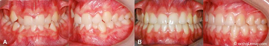 Correction des lignes médianes et de l'encombrement dentaire en orthodontie