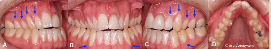Récession gingivale ou déchaussement présents avant le début d'un traitement d'orthodontie. Malocclusion dentaire; Déficience maxillaire transverse, contraction maxillaire. Peut nécessiter une greffe de gencive