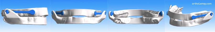 Orthèse d'avancée mandibulaire Narval