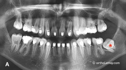 Radiographie panoramique montrant une molaire incluse pendant un traitement orthodontique
