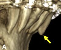 Racine sortie hors de l'os alvéolaire pendant des corrections orthodontiques visible sur une radiographie 3D