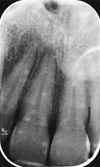 radiographie retro alveolaire periapicale orthodontie Sherbrooke