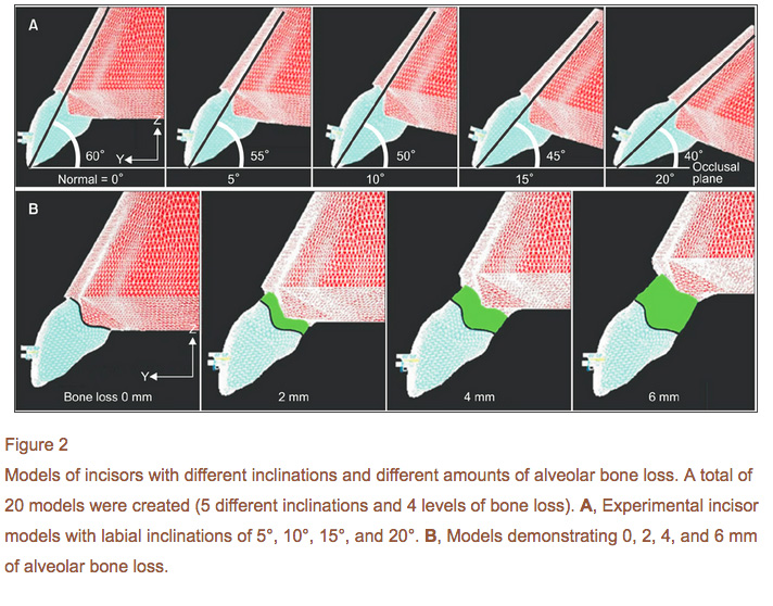 niveau-os-alveolaire-inclinaison-incisive-orthodontie