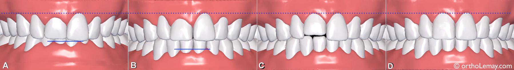 Simulation ClearCorrect pour évaluer différents mouvements dentaires à l'aide d'aligneurs transparents