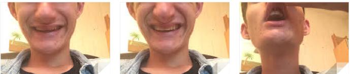 Mauvais dégagement des dents lors du sourire