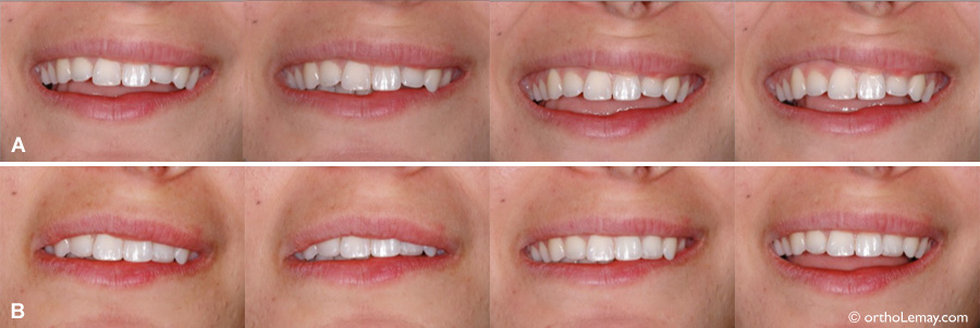L'esthétique du sourire est affecté par la position des lèvres et le dégagement des dents.