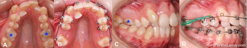Extraction de molaires abimées pour un traitement d'orthodontie