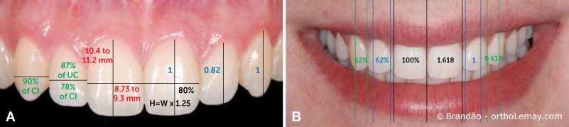 Évaluation de la dimension et forme des dents pour optimiser l'esthétique.