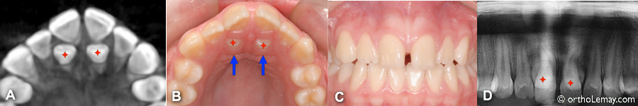 mesiodens lingual 5 orthodontie sherbrooke 38697 KG