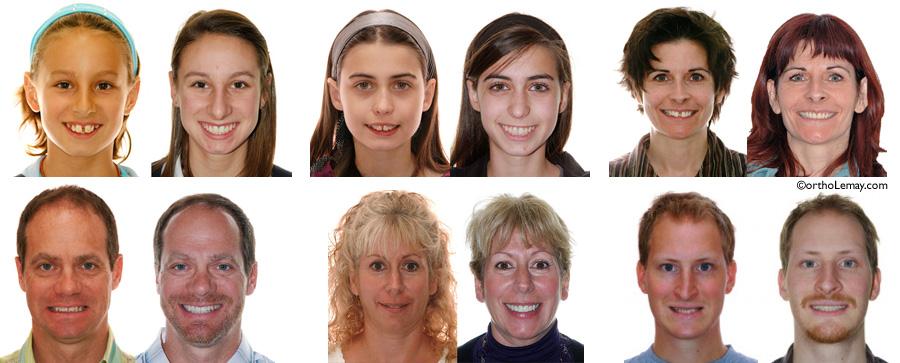 Exemple de corrections orthodontiques et de modification du sourire chez des adolescents et adultes